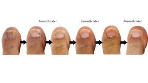 toenail fungus symptoms
