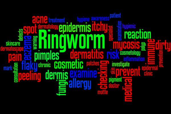 How To Get Rid of Ringworm -Toenail Fungus Online