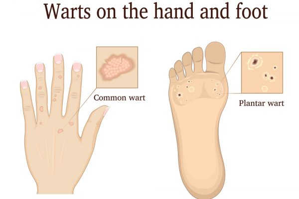 How To Get Rid of Warts - Toenail Fungus Online