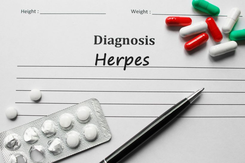 How To Get Rid of an Oral Herpes Outbreak - Toenail Fungus Online