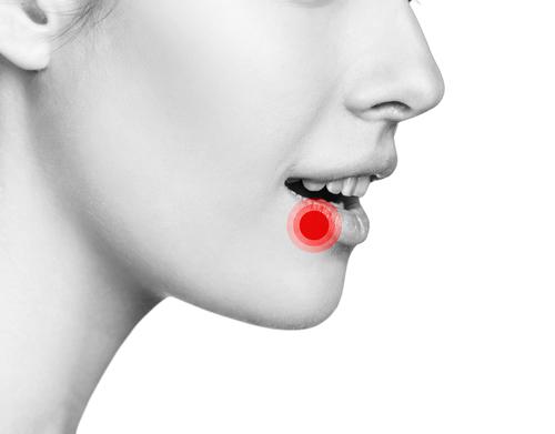 Symptoms of Oral Herpes - Toenail Fungus Online